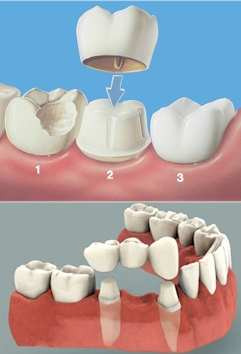mock-ups of a crown and teeth bridge