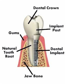 mock-up of a dental implant